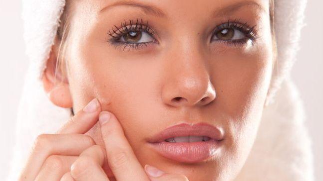 come sbarazzarsi dei rimedi domestici grassi per il viso