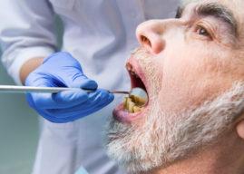 Ascesso dentale: cause, sintomi e rimedi naturali