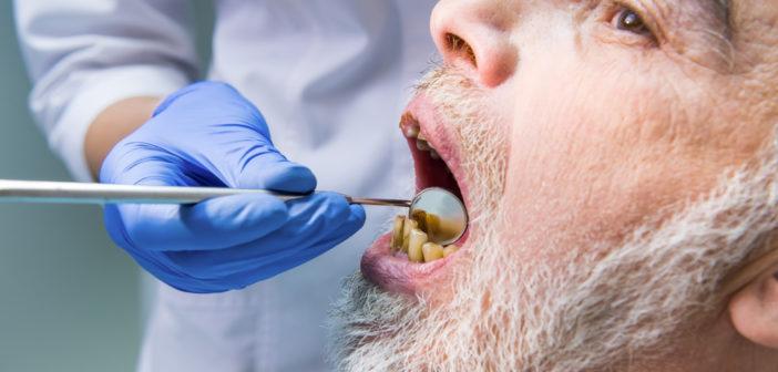 8 Rimedi Efficaci Contro il Mal di Denti