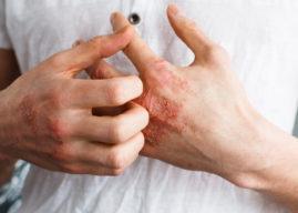 Eczema: cause, sintomi e rimedi naturali